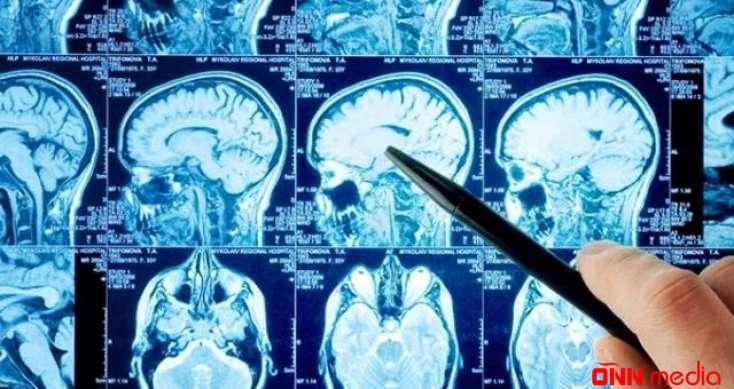 60 ildir beyni olmadan yaşayırmış – Tibb dünyası ŞOKDA