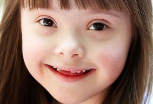 Daun sindromu – Ən çox rast gəlinən xromosomal anomaliya