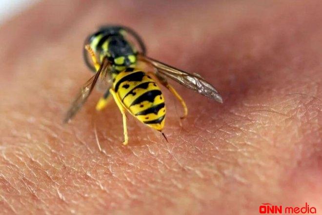 Tovuzda müəllim arı sancmasından öldü
