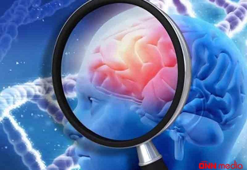 Ən çox yayılan beyin problemi – Miqrendən necə qurtulmaq olar?