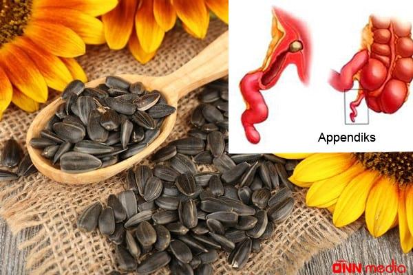 Tum çırtlamaq appendisitə səbəb ola bilər?