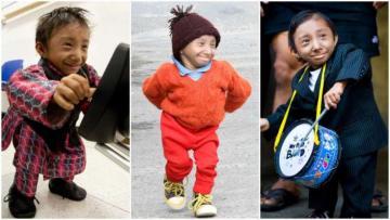 Dünyanın ən kiçik adamı HƏYATINI İTİRİDİ