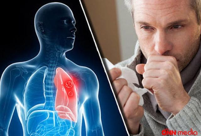 Koronavirus zamanı immuniteti və ağciyəri möhkəmləndirmək üçün RESEPT