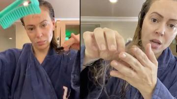 Məşhur aktrisa koronavirusun fəsadını kamera qarşısında göstərdi