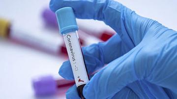 Koronavirusun YENİ SİMPTOMLARI üzə çıxıb – Səhiyyə naziri