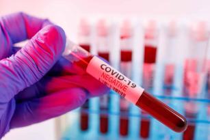 Azərbaycanda prokuror koronavirusdan öldü